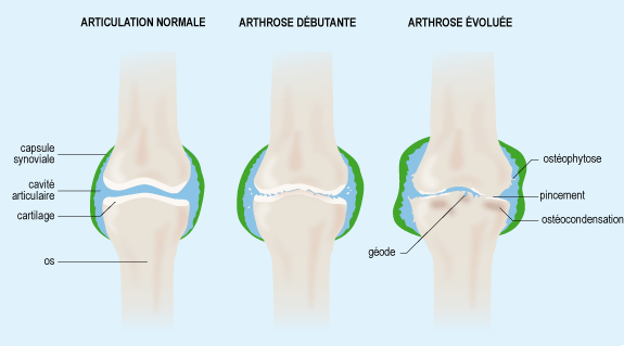 Explication de l'arthrose