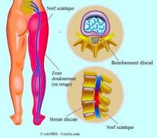 Il est parfois difficile de distinguer lombalgie et sciatique