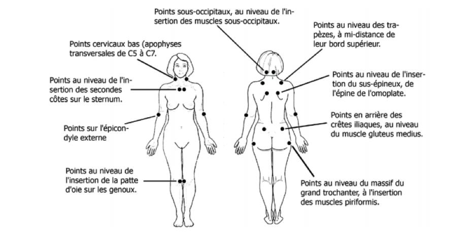 Les dix-sept points de douleurs liés à la fibromyalgie