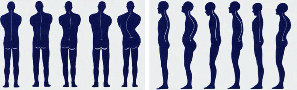 Le corps prend différentes postures, responsables de certaines pathologies que l'ostéopathe guérira en rectifiant la posture générale