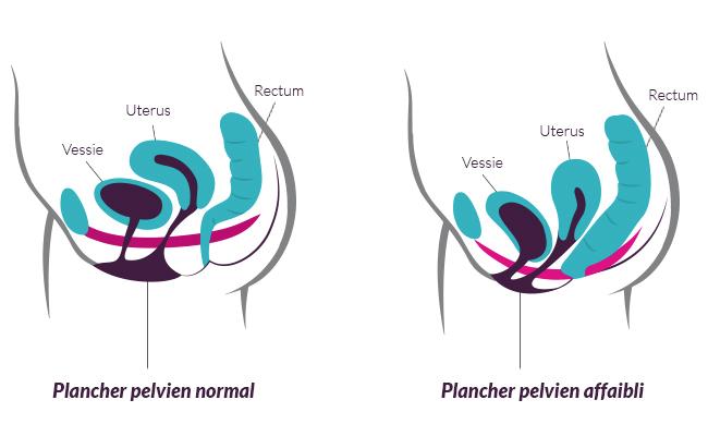 Le plancher pelvien prévient incontinence, descente d'organes et favorise une sexualité épanouie
