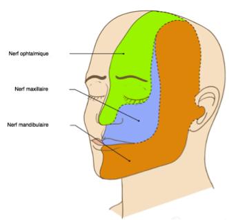 La névralgie du trijumeau est une douleur très intense au niveau de la joue