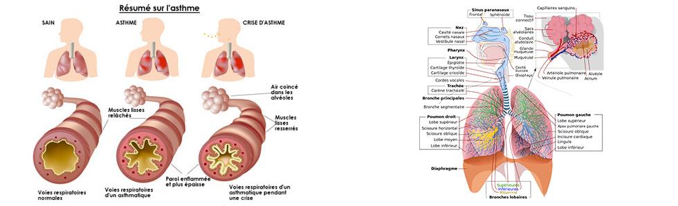 Les effets de l'asthme sur le système respiratoire