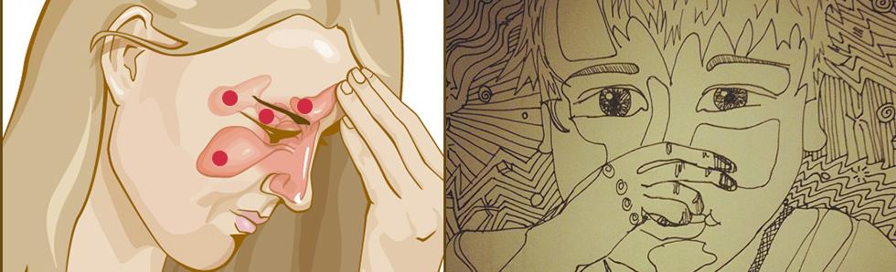 Les douleurs de la sinusite peuvent être très importantes, non traitée une sinusite surinfectée peut s'avérer dangereuse