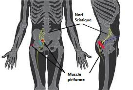 le syndrome du piriforme. Il s'agit de l'irritation du nerf provoquée par une hypertrophie du piriforme.