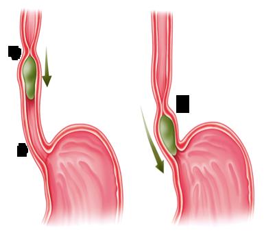 L'œsophage qui brûle touche de nombreuses personnes, sensibles au niveau du clapet œsophagien
