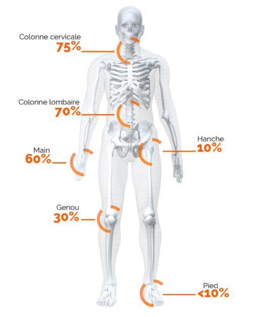 Le corps et l'arthrose